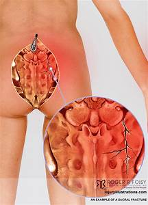 Seeking Compensation for Coccyx or Sacral Fractures  Coccyx