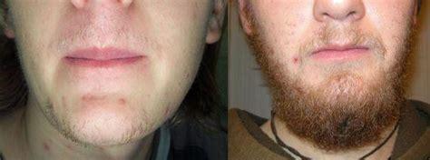 Fazer barba crescer com minoxidil | Minoxidil BR