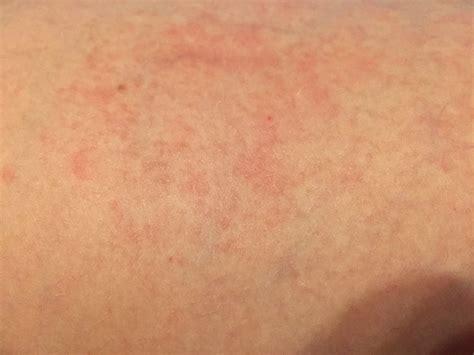 ist das eine kontaktallergie mit bild haut allergie