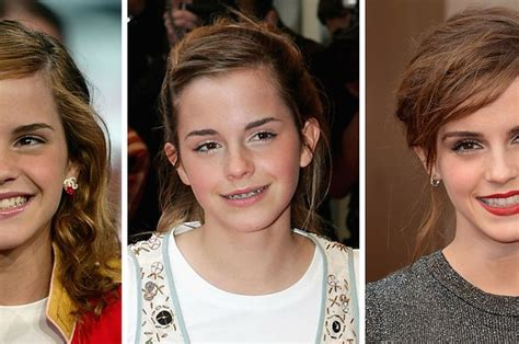 celebrities  prove braces  change  entire face
