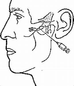 Extraoral Location For Maxillary Nerve Block