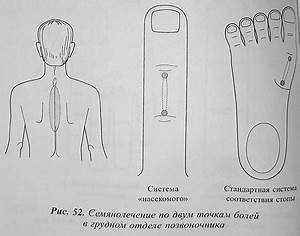 Лечение шейного остеохондроза у женщин по бубновскому