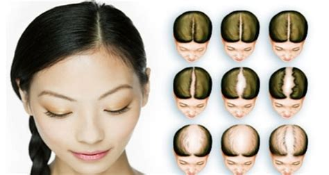 How To Stop Hair Loss Fast And Naturally  Healthy Food Advice
