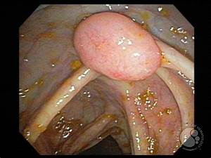 Follicular Lymphoma  Grade 1  3  In A Hepatic Flexure Polyp