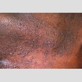 Poison Ivy Rash On Lips | 493 x 335 jpeg 40kB