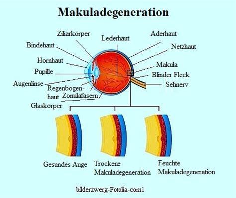 Zu Feucht Ursache by Altersbedingte Makuladegeneration Amd Makula Feucht