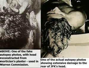 JFK Assassination Autopsy Body