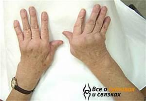 Гомеопатический препарат от артрита
