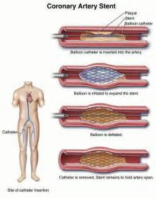 Heart Artery Stent Procedure