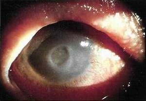 Sleeping In Your Contact Lenses