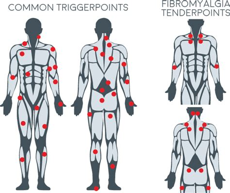 trigger points chart  massage trigger point guide body  company