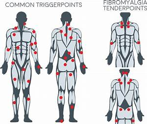 Back Trigger Points Chart
