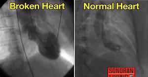 Broken Heart Sy... Broken Heart Syndrome
