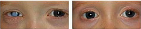 prosthetic contact lenses for light sensitivity contact lens clinic al salama eye hospital