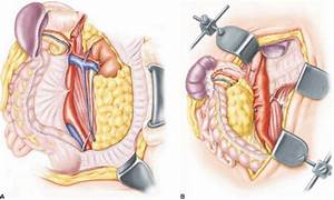 Thoracoabdominal Aortic Aneurysm Repair