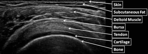 Shoulder anatomy on ultrasound   Radiology Case ...