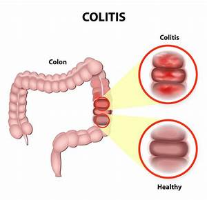 15 Hidden Causes Of Ibd  Ulcerative Colitis And Crohn U0026 39 S