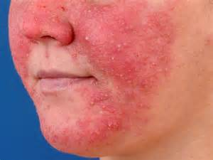 Papulopustular Rosacea Treatment