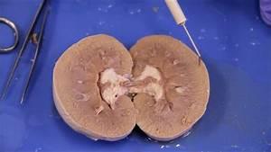 Bio202 L Sheep Kidney Dissection