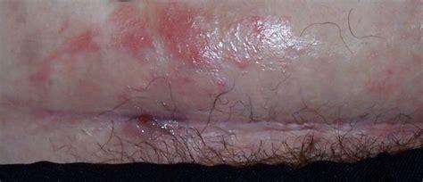 c section infection caesarean scar pictures