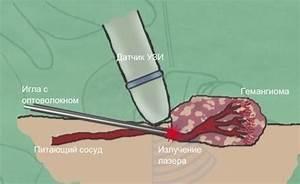 Вирус папилломы человека у женщин на шейке матки лечение фото