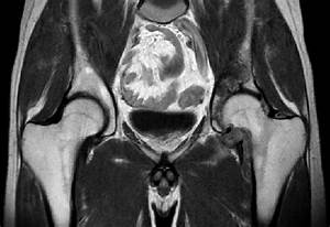 Mri Of The Hip  The Synovium Is Diffuse At The Hip With