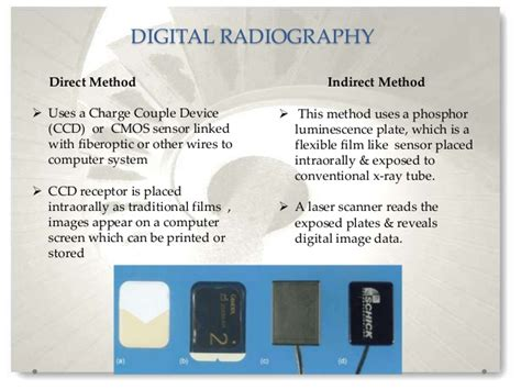 radiographic periodontics aids advanced phosphor ray psp indirect imaging systems