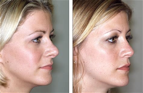 Successful Nose Job  Best Rhinoplasty