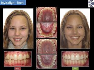 Invisalign® Before & After | Freehold Hightstown Manalapan ...