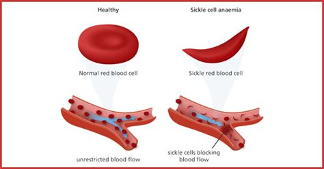 A Comprehensive Guide To Sickle Cell Anemia. What Is Apr On Credit Cards Oil On Clothes. What Are Good Online Schools. Asi Supplemental Insurance Types Of Firewalls. Stars With Hair Transplants Lowes Visa Login. Learn Ms Project Online Electrician Katy Texas. Dallas Dedicated Servers Plumbers In Flint Mi. Online Petroleum Engineering Degree. Ny & Company Credit Card Formula Breast Milk