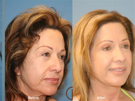 fat grafting  face  california facial