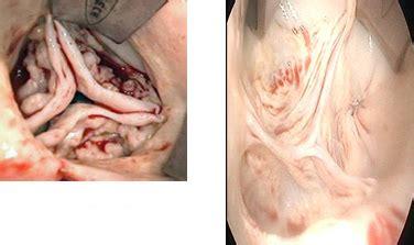 pericardial sac 自己心膜を使用した大動脈弁形成術とは 東邦大学医療センター大橋病院 心臓血管外科