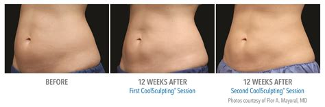 When Will I See Results From Coolsculpting?