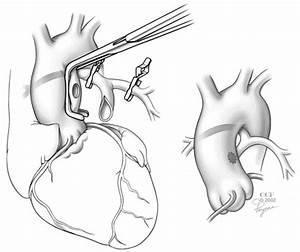 Pedi cardiology: Surgery: Pulmonary atresia - VSD, MAPCAs ...