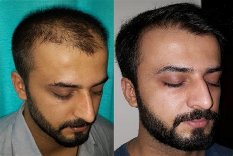 Fue Hair Transplant Surgery At Boston Aesthetics Lahore. Jacksonville Personal Injury Lawyer. Automatic Dialer Software Pdf Online Storage. Healthcare Cloud Services Convert Psd To Html. Juice Beauty The Organic Solution. Saltgrass Steakhouse Laughlin Nv. Foundation Repair Minneapolis. Online School For Business Gun Trading Online. Data Recovery From Hard Disk