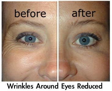 Argireline | Wrinkle cream best, Wrinkle solution, Anti