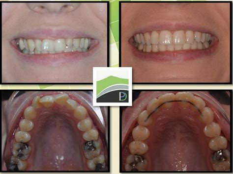 How do i find dental insurance with any type of plan, be sure to check if orthodontic coverage is included. Quick Braces   Inverurie Dental Practice
