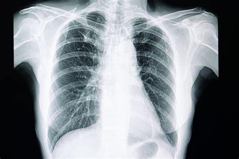 lungenfibrose da bleibt die luft weg seltenekrankheitinfo