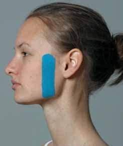 Kiefer Formschnitt Anleitung : schmerzen einfach mit dem tape therapieren zm online ~ Eleganceandgraceweddings.com Haus und Dekorationen