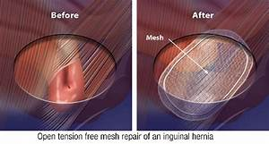 Image Gallery hernia surgery recovery