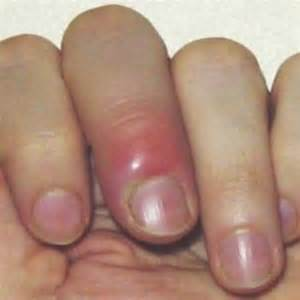 nail infection herbal remedies natural treatments and