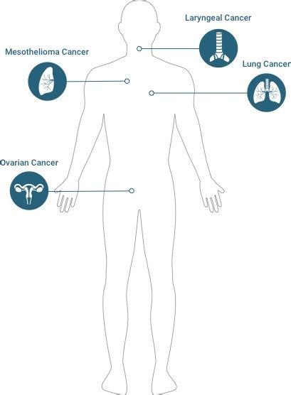 asbestos cancer mesothelioma lung cancer  cancers