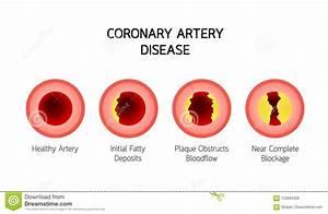 Heart Disease Info