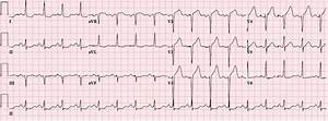 Dr. Smith's ECG Blog: LVH with anterior ST Elevation. When ...