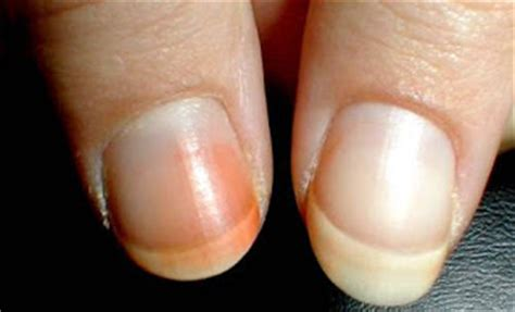 nails care orange nails discoloration nails diseases
