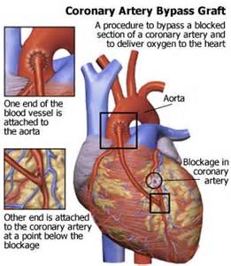 BypassGraft Coronary Artery Bypass Graft