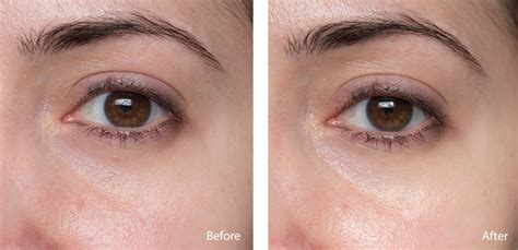 100% Pure Bright Eyes Mask  Review, Before & After
