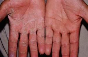 Шелушение кожи ног грибок на коже фото