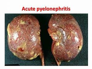 U T I Cystitis  U0026 Pyelonephritis