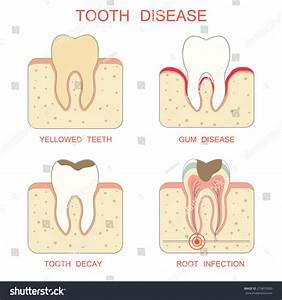Tooth Decay Disease Periodontal Gum  Yellowed Teeth  Root